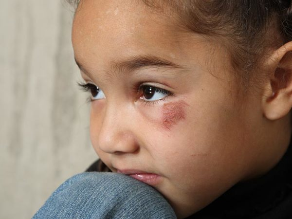child's injury